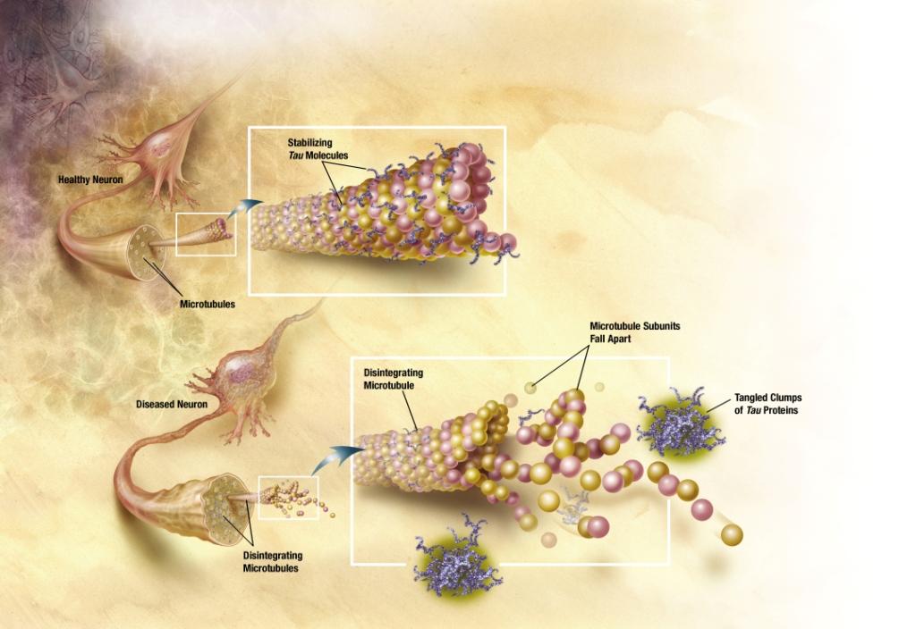 Via l'Alzheimer con le cellule spazzino [MEDICINA]