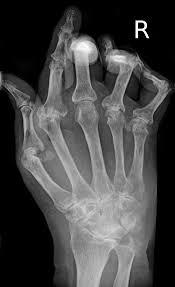 Sclerosi multipla e artrite reumatoide, cura italiana promossa dagli Usa [FISIOTERAPIA E RIABILITAZIONE]