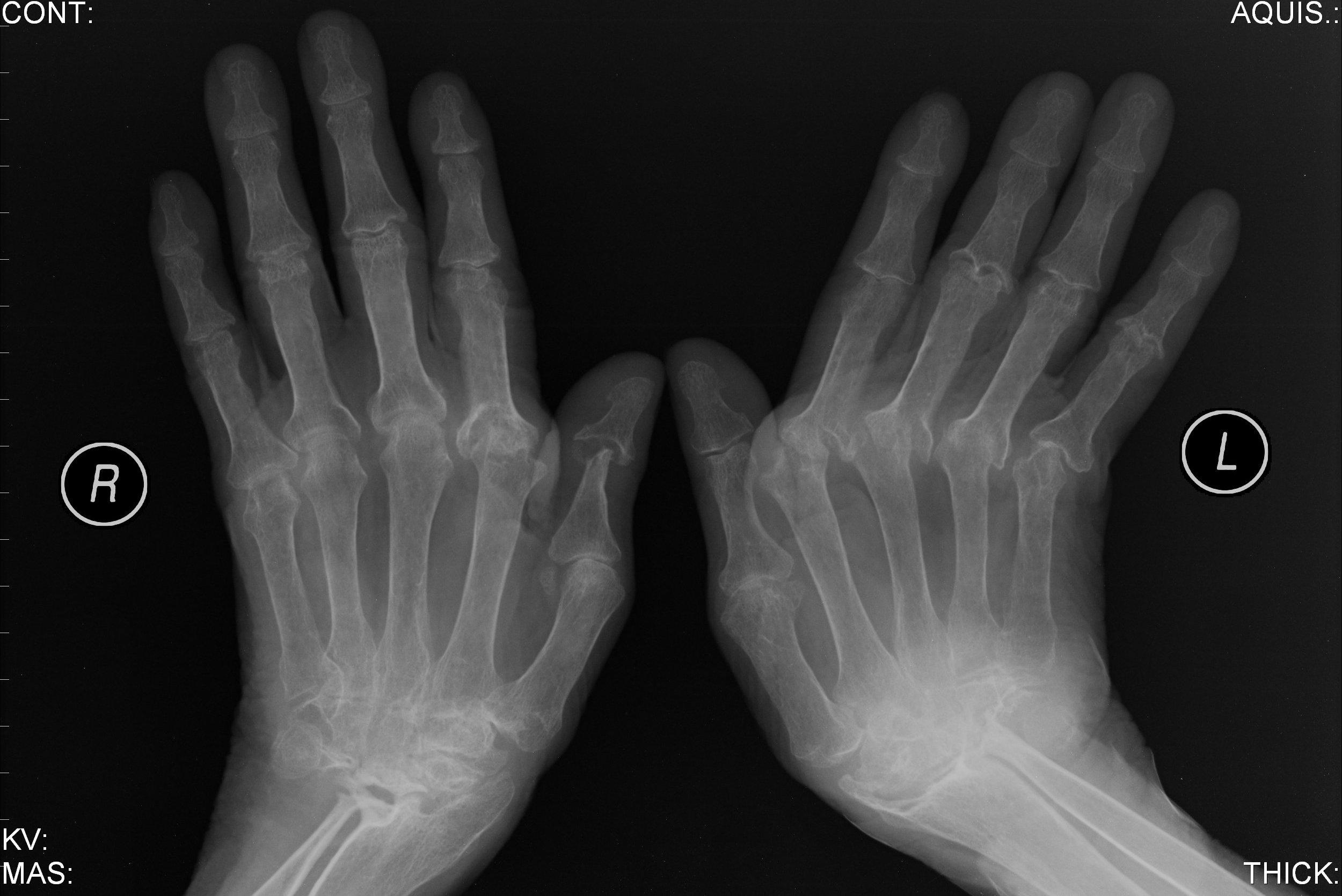 artrite-nas-maos