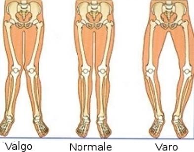 Il ginocchio valgo si può curare? I migliori esercizi correttivi
