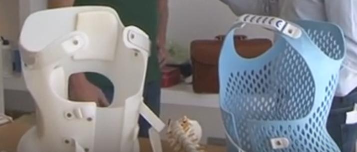 Busti per la scoliosi realizzati con la stampa in 3D