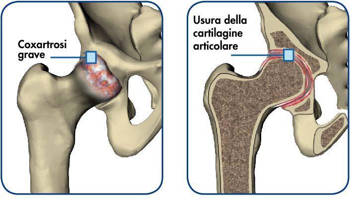 Coxartrosi: cure, sintomi ed esercizi