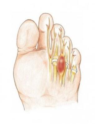 Neuroma di Morton: la malattia del tacco alto