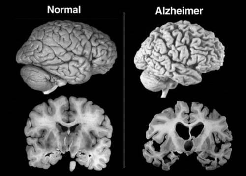 Il vaccino per l'Alzheimer sembra funzionare: trial al via quanto prima