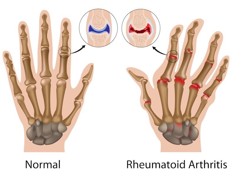 Artrite reumatoide: comincia l'era dell'elettrostimolazione