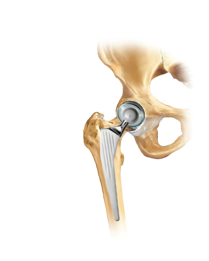 Protesi all'anca e al ginocchio: i diversi tipi e le tecniche di impianto