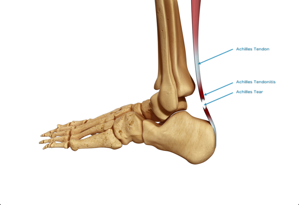 Tendine d'Achille: la ricetta per guarire da una tendinopatia