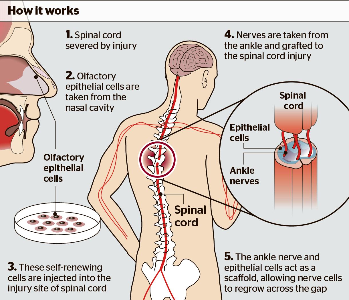 Paralizzato torna a muoversi grazie alle cellule del naso