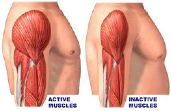 Distrofia muscolare: cause, sintomi e cura
