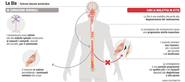 SLA: un farmaco sperimentale rallenta la perdita di neuroni