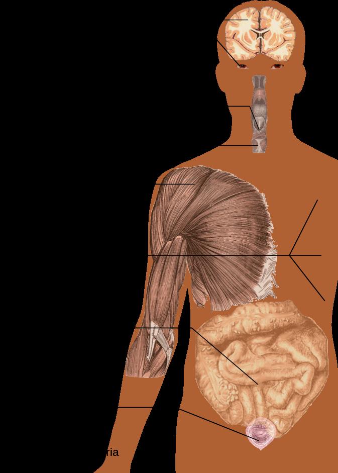sclerosimult