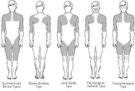 Le distrofie muscolari
