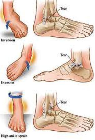 Instabilità di caviglia