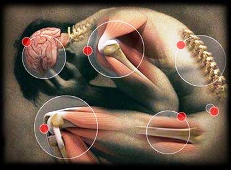 terapia_del_dolore