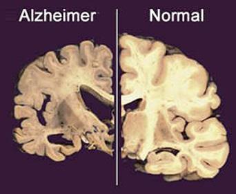alzheimer-sintomi