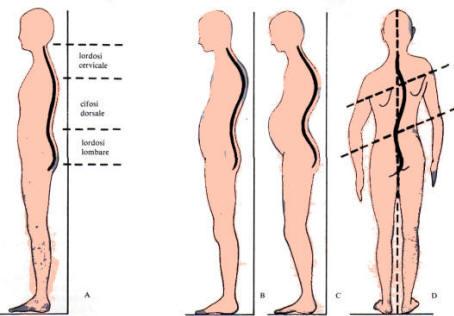 Prevenzione paramorfismi e dimorfismi