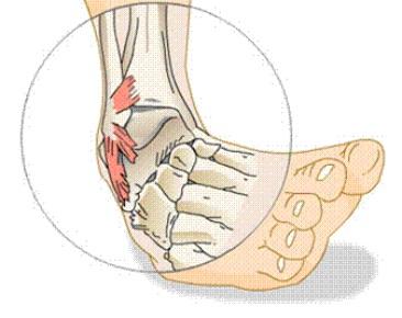 Distorsione caviglia, fisioterapia non migliora il recupero rispetto all'autogestione
