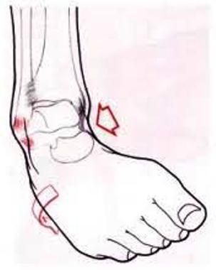 Distorsione alla caviglia: meglio la fisioterapia o ghiaccio e riposo?