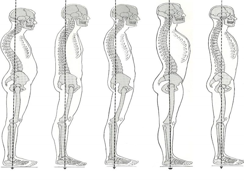 15 milioni di italiani col mal di schiena, l' importanza della ginnastica posturale