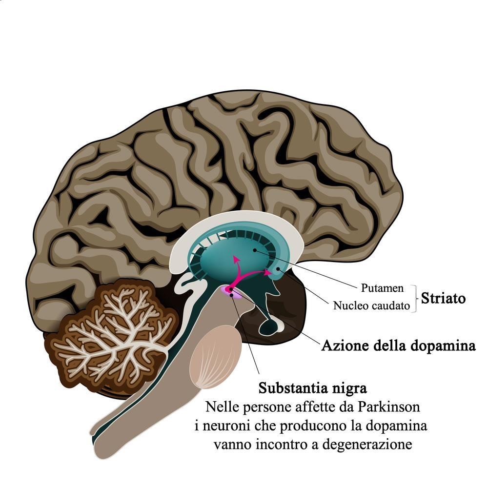Perché viene e come si cura il Parkinson I primi sintomi cui prestare attenzione
