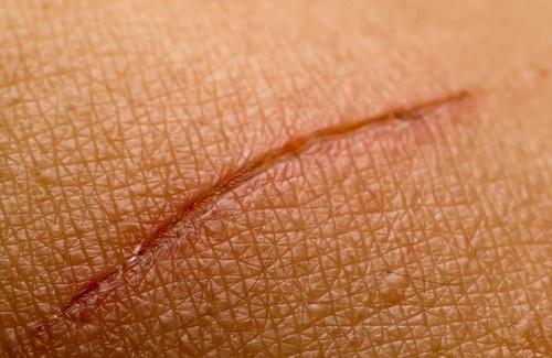 Cicatrici e fisioterapia