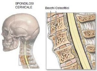 Spondilosi cervicale: cause, diagnosi e terapia