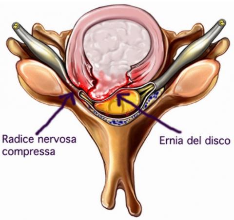 Ernia cervicale: sintomi, cure e esercizi