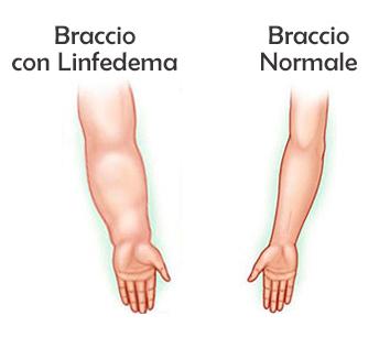 Tumore al seno, l'attività fisica contro il rischio di linfedema