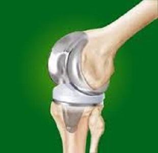 """Artroprotesi di ginocchio, """"istruzioni"""" per l'uso"""
