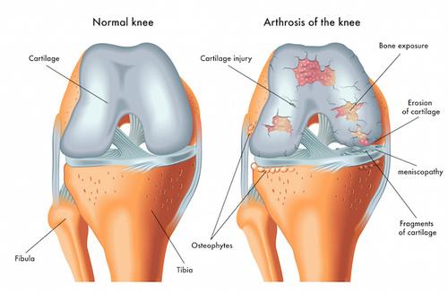 Il ginocchio scricchiola? Artrosi in agguato