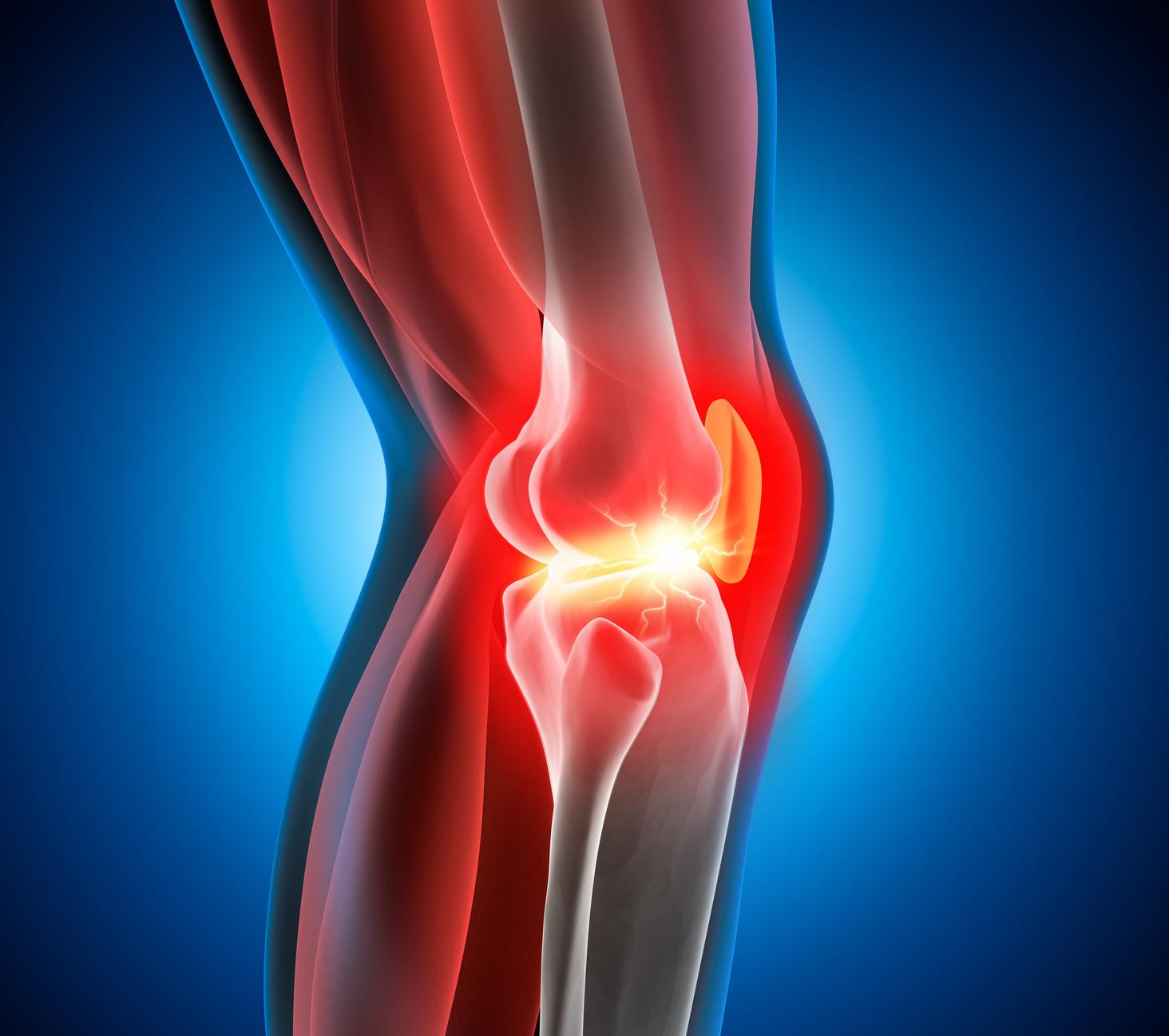 Dolore ginocchio, cosa consigliare al paziente e criteri di Ottawa