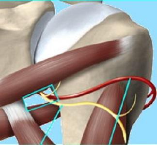 Sindrome dello spazio quadrilatero della spalla