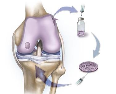 Problemi con la cartilagine al ginocchio? Arriva un nuovo farmaco innovativo