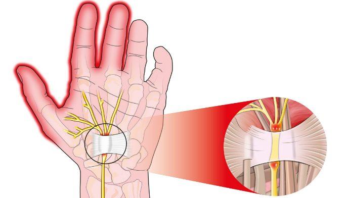 Sindrome del tunnel carpale: i rimedi casalinghi funzionano?