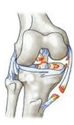 La Triade Infausta: crociato anteriore, collaterale mediale e menisco mediale