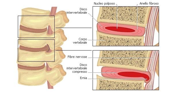 Ernia del disco: quando operare? Prevenire con la fisioterapia