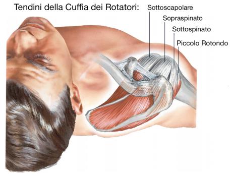 «Cuffia dei rotatori»,  quel dolore per usura alla spalla