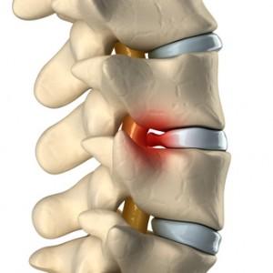 I sintomi dell'ernia cervicale