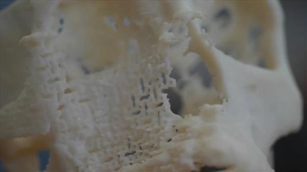 """Primo impianto con ossa stampate in 3D supera il """"rigetto"""""""