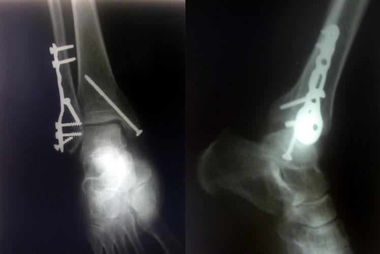 Si devono togliere i ferri nelle ossa?