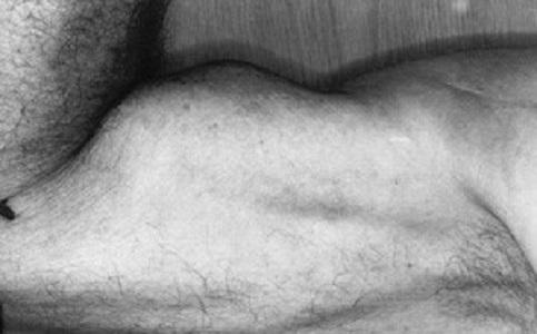 Il segno di Braccio di Ferro (Popeye Sign o Popeye Deformity)