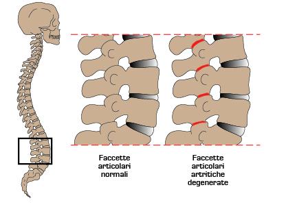 Sindrome delle faccette articolari lombari: una causa frequente di mal di schiena