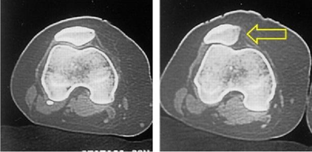 Sindrome da iperpressione femoro-rotulea