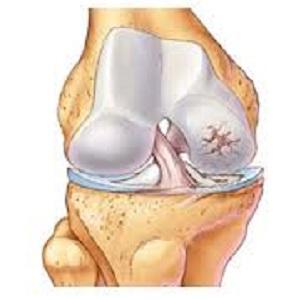Artrosi al ginocchio, disturbo in aumento e non soltanto per via di obesità e longevità