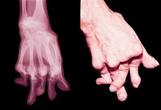 Le malattie reumatiche «prediligono» le donne