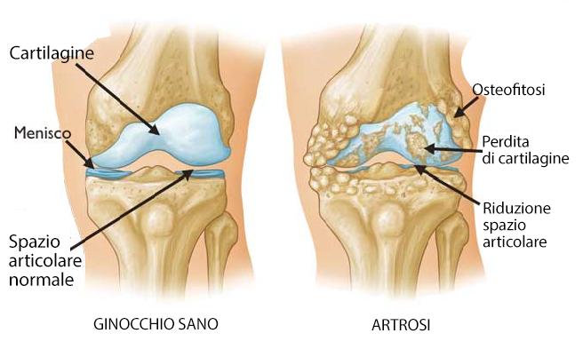 Quattro tipi di esercizi per l'artrosi