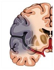 Ischemia cerebrale, cos'è? Sintomi, danni e cure