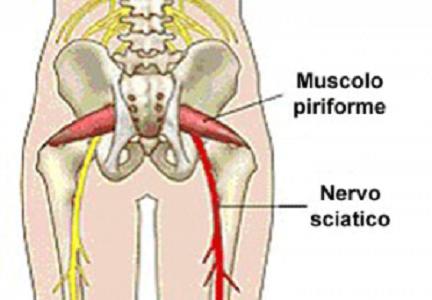 Sindrome del Piriforme, tra i sintomi principali c'è il…
