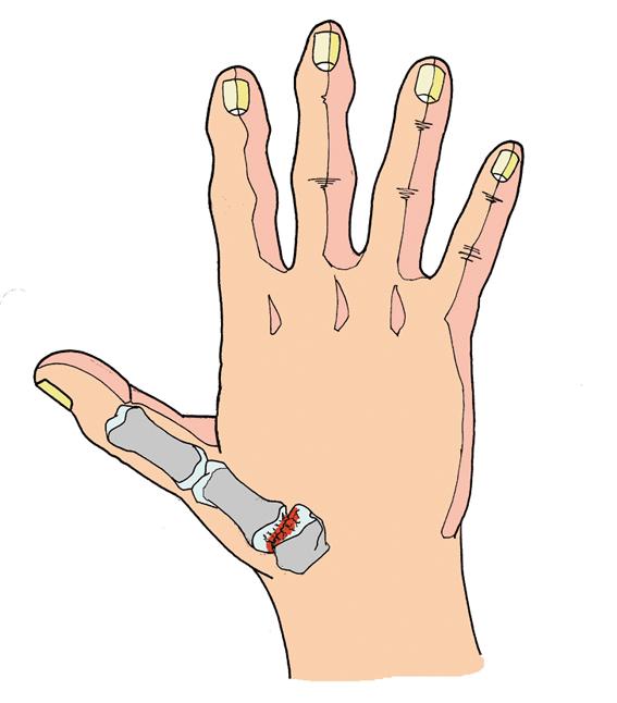 Se il pollice soffre di artrosi