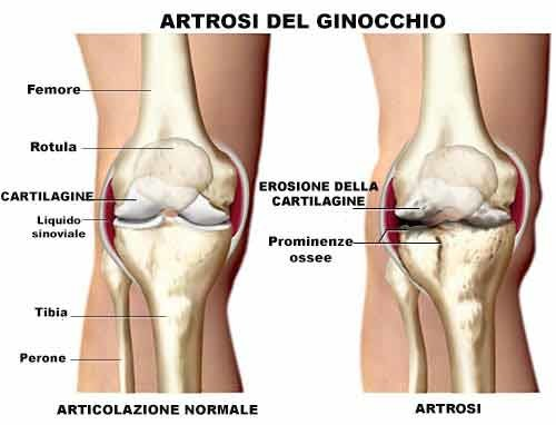 Artrosi del ginocchio: sintomi, diagnosi e trattamenti